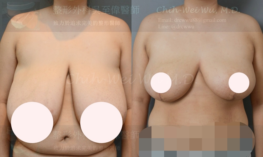 大量減重後胸部嚴重下垂,接受倒T切口提乳手術,同時合併自體脂肪填補上胸,提乳手術權威吳至偉醫師
