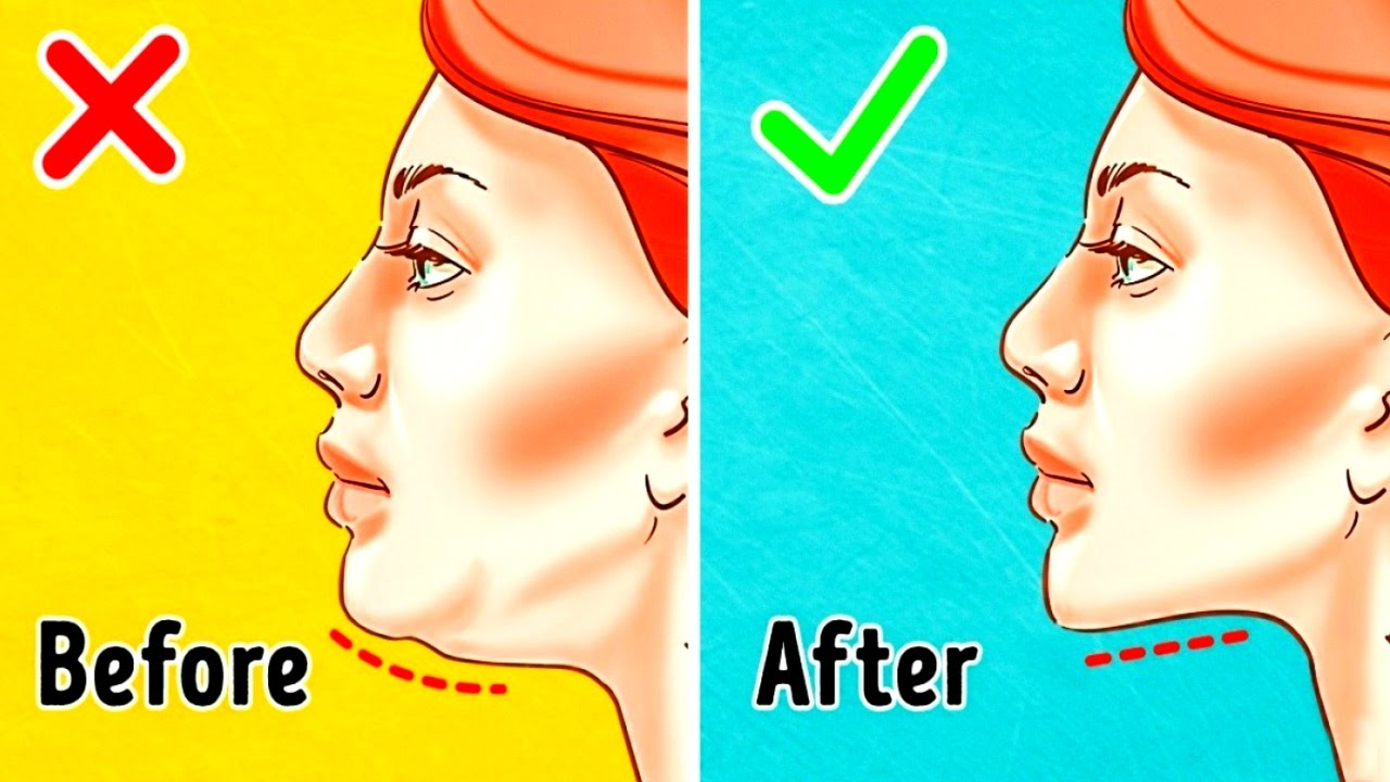 5 Effective Tips To Get Rid Of Double Chin