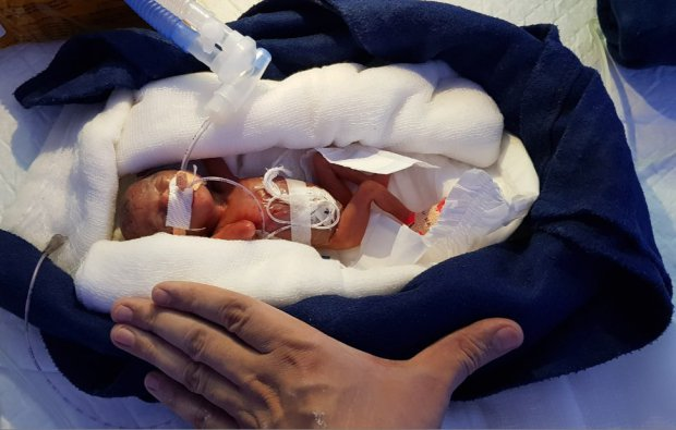 "Baby Born 12 Weeks Prematurely And Weighing Just 0.8 lb Is The ""Smallest Ever To Survive"""