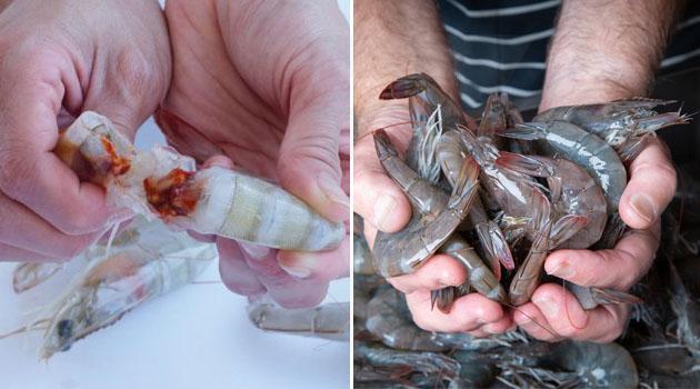 Jari dipotong selepas dijangkiti bakteria pemakan daging ketika mengopek udang