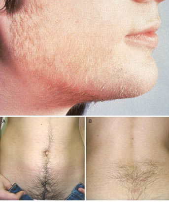 Medication Facial Hair Growth 120
