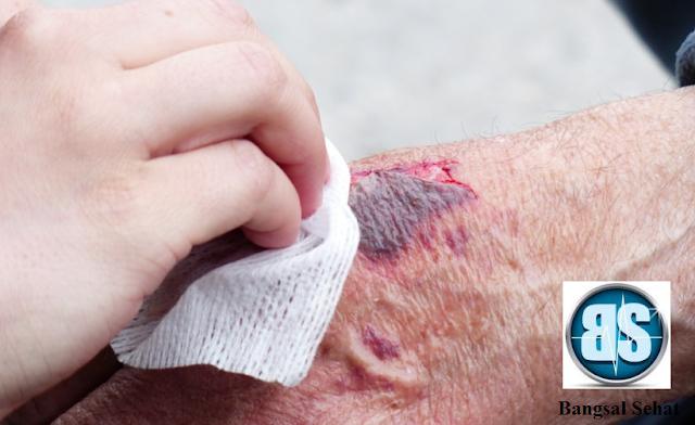 Luka Bakar merupakan salah satu jenis luka yang yang sangat berpotensi dehidrasi bahkan p Hitung Kebutuhan Cairan Pasien Luka Bakar Menggunakan Rumus Baxter
