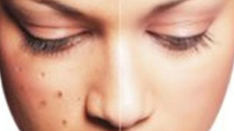 Cara alami menghilangkan flek hitam dan bekas jerawat