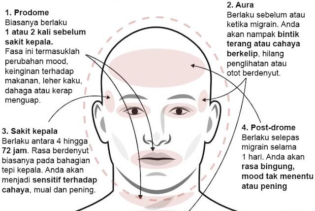 Jenis Jenis Migrain
