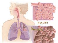 Penyebab dan gejala Bronkitis