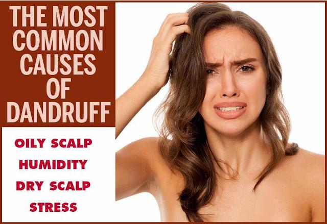 أسباب قشرة الشعر عند النساء