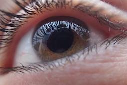 8 Tips Mengatasi Ablasio Retina