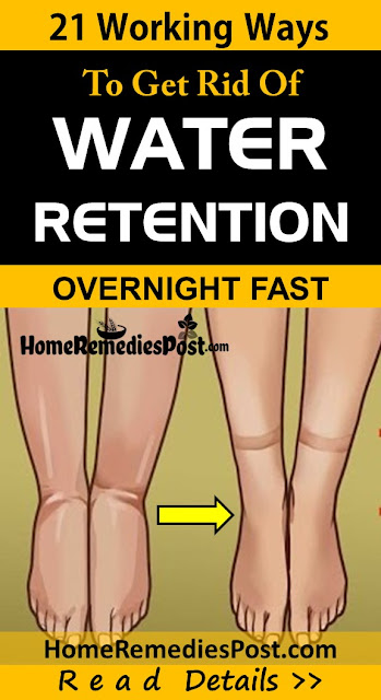 home remedies water retention, how to get rid of water retention, get rid of water retention fast, how to reduce water retention, Edema