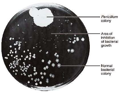 The history of the discovery of penicillin