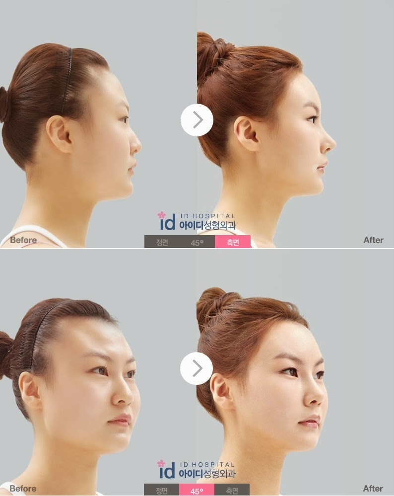 ID Hospital Korea: A Perfect Nose Profile - Barbie-line ...