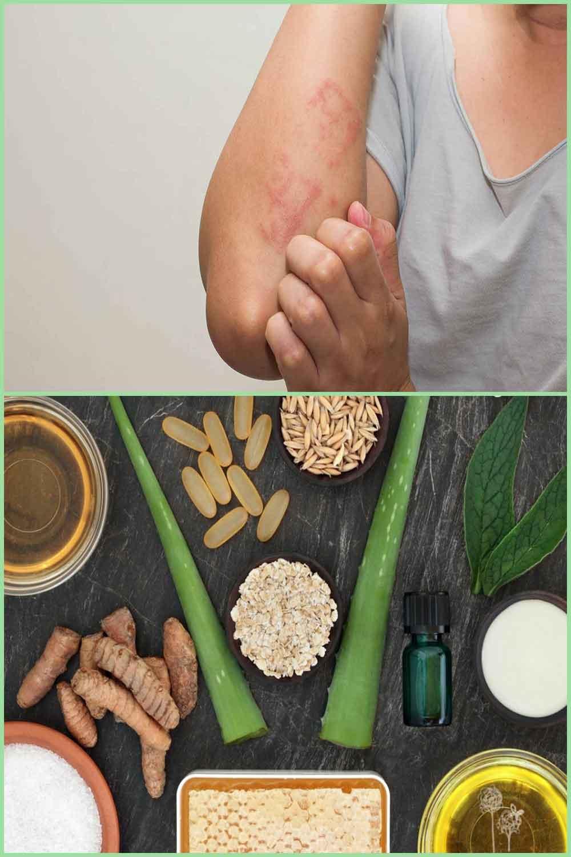 Traitez les allergies cutanées à la maison avec ces 10 remèdes faciles