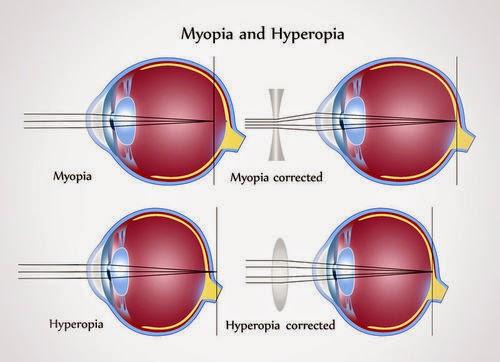miopie, cel mai înalt grad