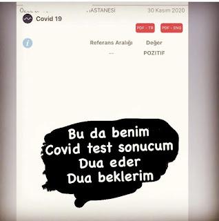 Covid testim POZİTİF