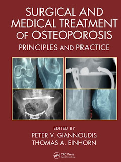 Surgical and Medical Treatment of Osteoporosis: Principles and Practice 2020