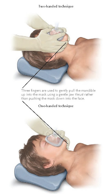 Figure 1-5 Maintaining airway patency and securing the mask in bag–valve–mask ventilation.