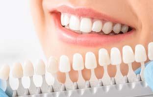 اسعار تركيبات الاسنان المتحركة