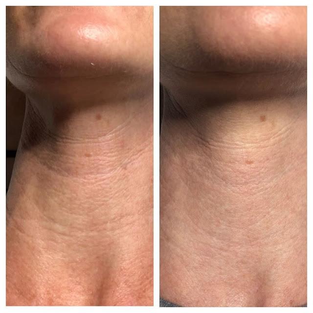 Pour rendre la peau du cou jeune et lisse suivez ces 6 conseils