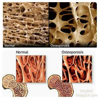 Osteoporosis: Senyap-senyap ia datang menyerang!