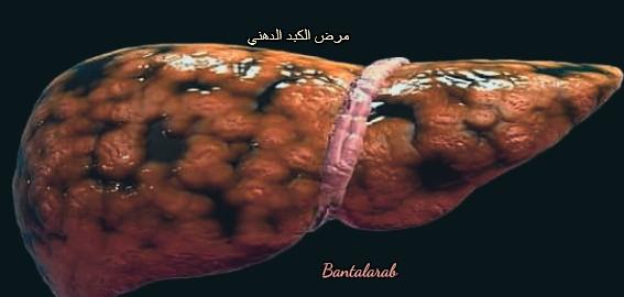 مرض الكبد الدهني fatty liver disease