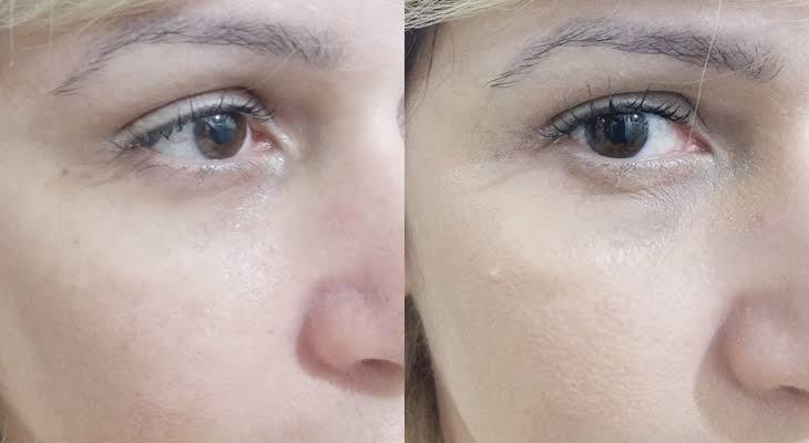 Instantly Ageless com ou sem maquiagem?