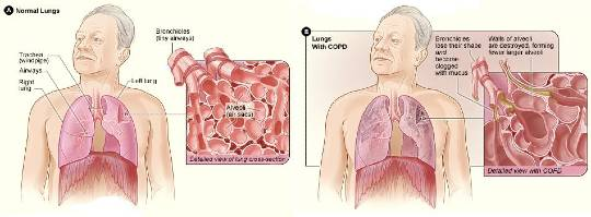 Types of chronic obstructive pulmonary disease explained 2020
