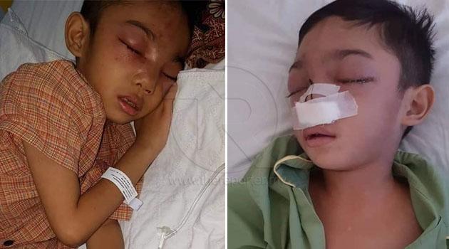 'Apa salah dia?!' - Murid Tahun 1 dipukul sampai retak tulang hidung sebab tak bagi duit kepada pembuli
