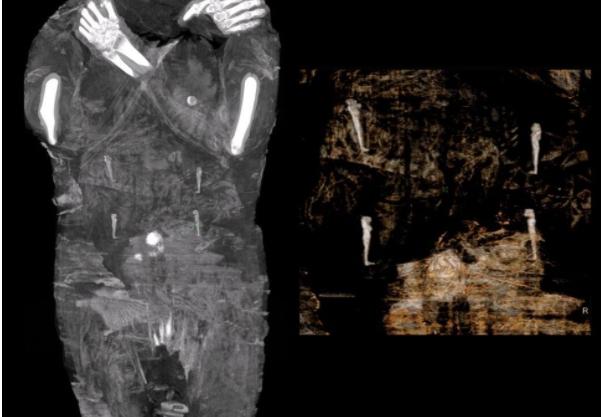 A área abdominal da múmia pode ser vista com amuletos que representam os Quatro Filhos de Hórus.  (Crédito da imagem: Projeto Múmia de Varsóvia)