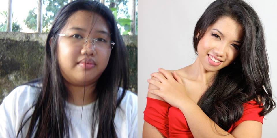 Turun 92 Kg, Ini Rahasia Diet Si Gadis Obesitas