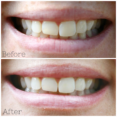 I've regained my confidence and eliminated coffee teeth stains with Smile Brilliant Teeth Whitening kit. These before and after pictures prove the teeth whitening system really works!