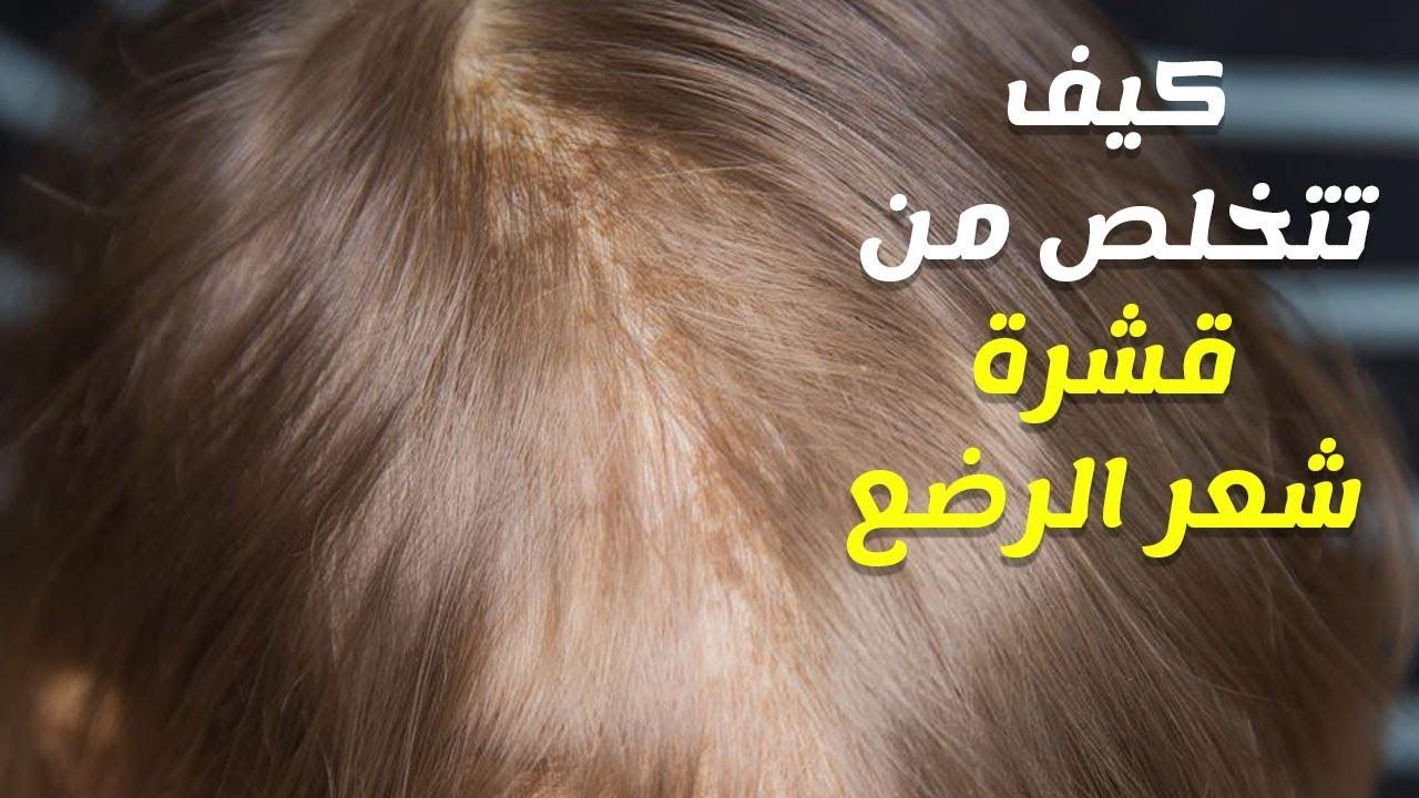 ماهى أسباب قشرة الشعر عند الأطفال