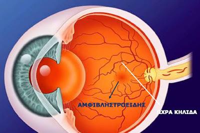 Αιτίες απώλειας όρασης και τρόποι αντιμετώπισης. Παγκόσμια Ημέρα Όρασης (κατά της τύφλωσης) 5