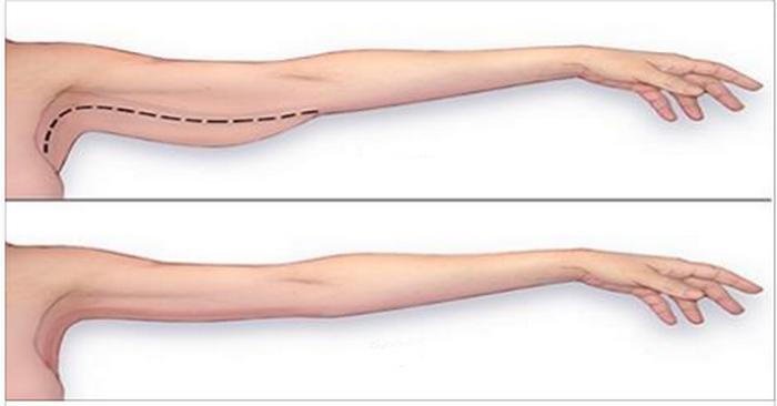 diagnostic diferențial semnificativ pentru pierderea în greutate
