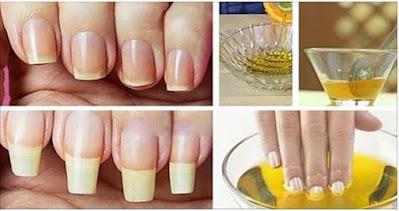 As unhas dos dedos das mãos tornam-se quebradiças porque ficam muito secas, o que faz com que fiquem rígidas e se quebrem com facilidade