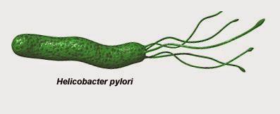 Infeksi Helicobacter Pylori dan Pengobatan