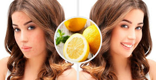 Eliminate All Acne Scars Just With Lemon