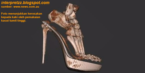 Imbasan 3-D kasut tumit tinggi menghancurkan kaki, secara terperinci  dan menakutkan