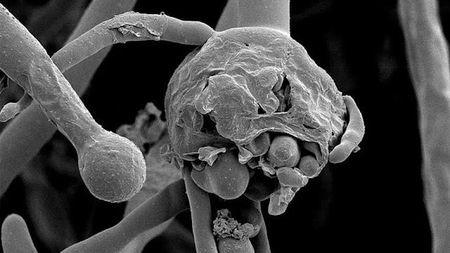 كيف تكتشف الفطر الأسود ؟ تعرف على أعراض الفطر الأسود القاتل