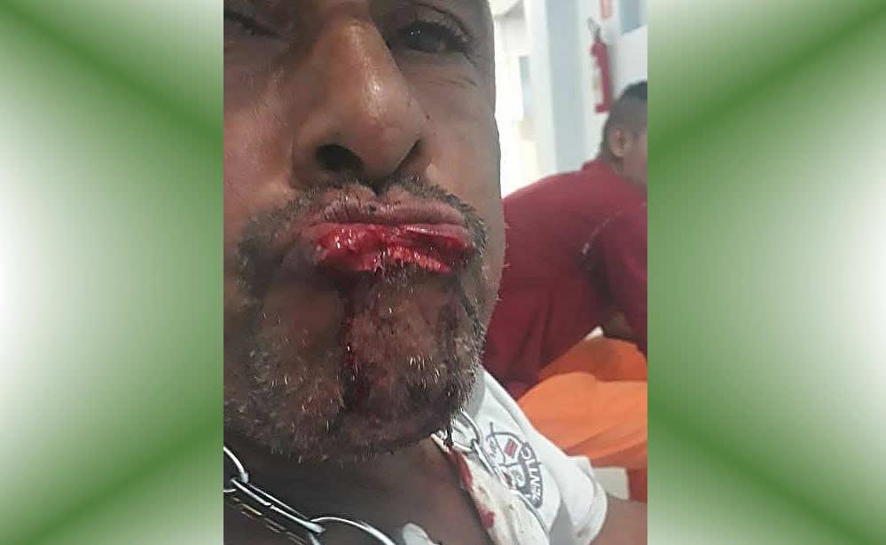 Homem tenta beijar mulher à força e tem o lábio arrancado com uma mordida em Porteirinha, MG