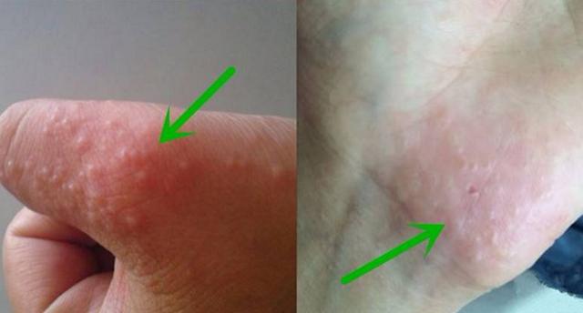 Bintik Berair dan Gatal Sering Muncul di Tangan? Banyak yang Tak Tahu Semudah ini Cara Mengatasinya