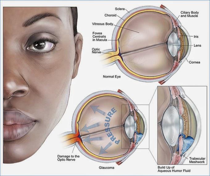 #Glaucoma | O que é Glaucoma?