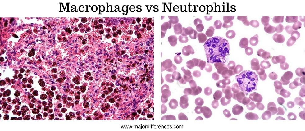 Neutrophils vs Macrophages