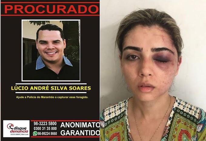 Advogada espancada pelo ex-marido no MA pede Justiça