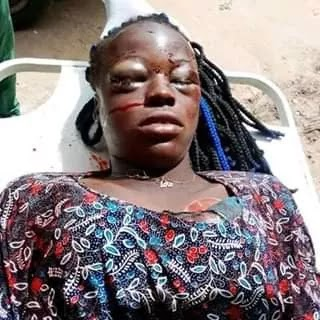 Lady Dies In A Fatal Accident In Suleja.