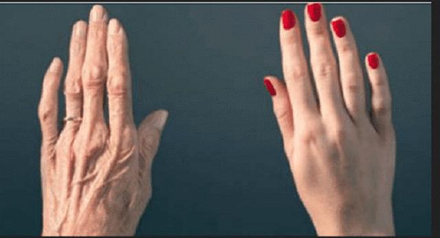 Tangan Anda Tak Bisa Bohongi Umur Anda, Inilah Tips Agar Tangan Lembut dan Bebas Keriput. Berikut Ulasannya…