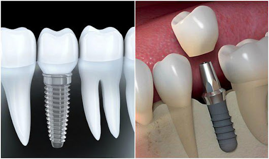 Outlining the Most Important Things Regarding Dental Implants