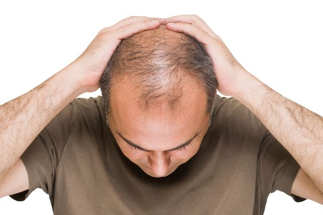 Bald men 'at greater risk' of having serious coronavirus symptoms study claims