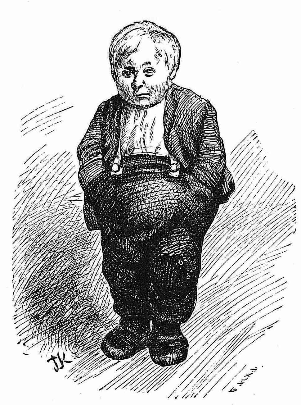 a Theodor Kittelsen illustration of an unusual child