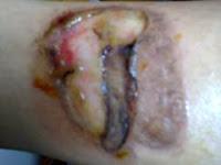 http://goresansay.blogspot.co.id/2015/09/obat-pengering-luka-tradisional.html