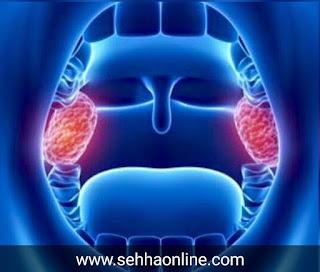 التهاب اللوزتين، اللوزتين، علاج اللوزتين، مرض اللوزتين، tonsillitis, Tonsils, Treatment of tonsils, Tonsillitis،