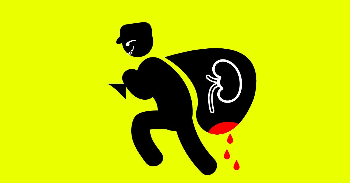 Tráfico de riñones: Mitos y verdades. | Uronoticias
